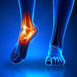 foot-litmos