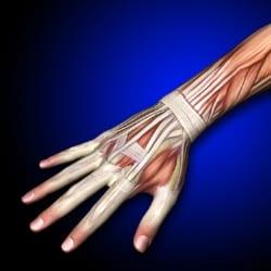 wrist-litmos