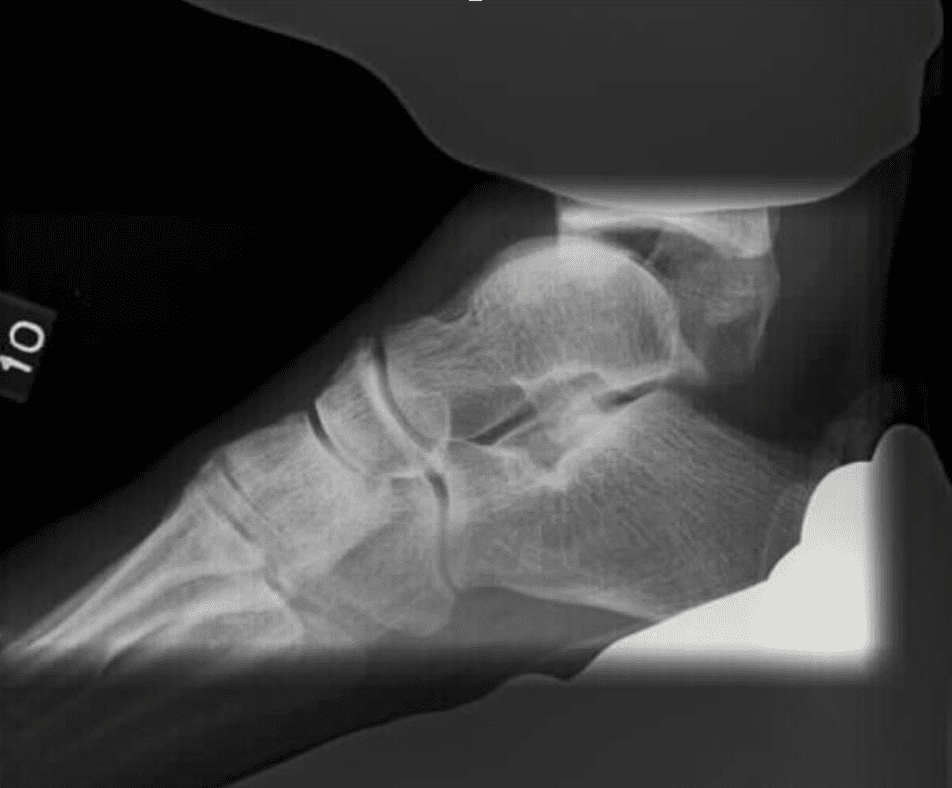 Fibular Malalignment in Individuals with Chronic Ankle Instability