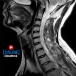 A Physical Therapist's Guide to Cervical MRI Images